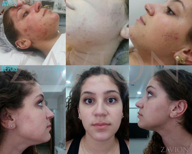 fototerapia-com-led-antes-depois